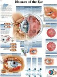 An interesting resource for the Sandwich Generation - a Diseases of the human eye chart