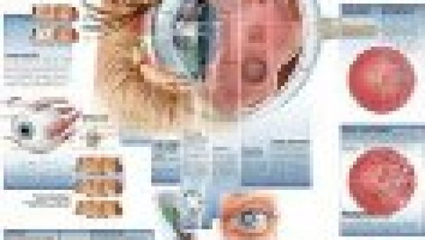 Diseases of the human eye - chart