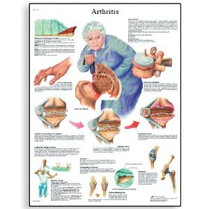 Many of us in the Sandwich Generation are dealing with arthritis - in our elderly parents as well as in our own bodies