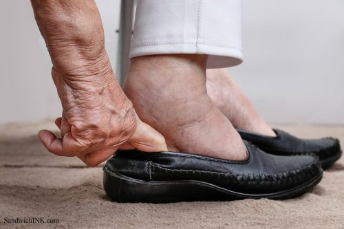 hammertoes diabetes edema arthritis lack of range of motion all require footwear elderly wmen and women find easy and comfortable